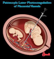 Twin to twin transfusion syndrome fetal surgery