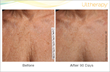 Ultherapy Before and After Photos 90 days Chest