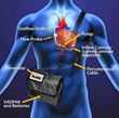 ReliantHeart Commences FDA Trial on HeartAssist5® VAD