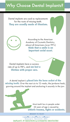 Why choose dental implants?