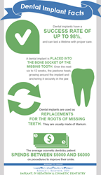 Dental implant facts.