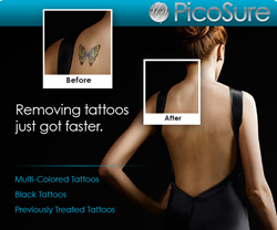 Tattoo Removal, PicoSure Laser