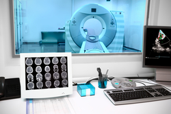 The Airo® Mobile Intraoperative CT Scanner
