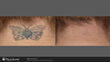 Picosure Tattoo Removal after 6 treatments