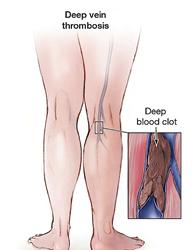 Deep Vein Thrombosis diagram - NYC Surgical Associates