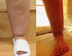 Lipedema Centers NY Lipedema patient's legs before and after first treatment