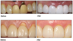 Board Certified Periodontist, Dr. Alan Timko, now offers Pinhole Surgical Technique to patients in Pittsburgh, PA