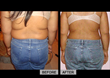 New Patients can Burn Fat 4X Faster with Diet Doc's Complementary...