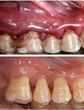 Gum Disease Now More Common than Diabetes, and Traditional Treatment...