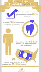 Facts about dental implants.