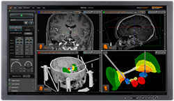 Newest version neuroinspire™ surgical planning software