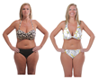 A New Method for Breaking Down Cellulite was Covered on NewsWatch...