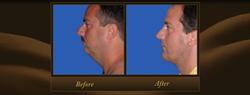 Actual Patient - Neck Lift w/ Chin Augmentation