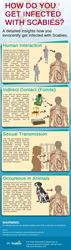 scabies infestation infographic