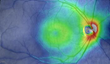 Kitware Receives Award to Develop Retinal Image Management System...