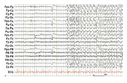 Generalized Electroencephalogram  Onset for the First Generalized Tonic– Clonic Seizure