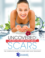 Scarinex Scar guide - Uncover The Info You Must Know About Scars