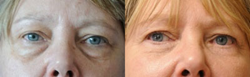 Lower Blepharoplasty Before & After
