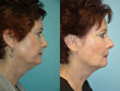 Dr. Brian Maloney at The Maloney Center for Facial Plastic Surgery