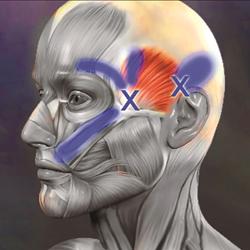Chronic Migraine & Tension Headaches Treatment