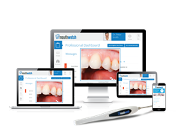 Intraoral Imaging - Anytime, Anywhere
