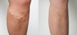 EVLA varicose vein treatment results