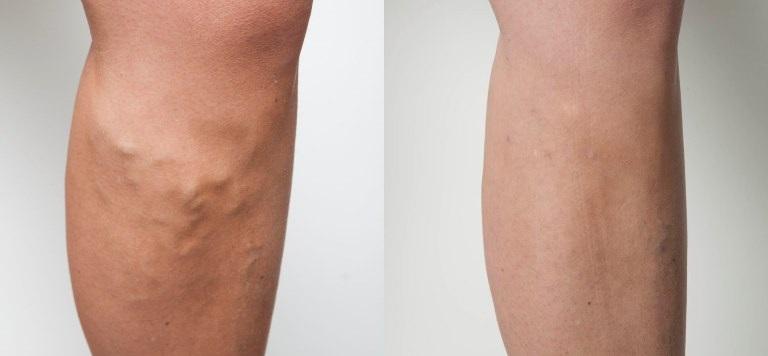 Varicose Veins Day Case Treatment Using Latest Laser
