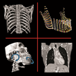 Stratovan Corporation's Checkpoint Software Delivers Better Shape Analysis of 3D Medical Images