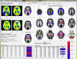 Dementia PET-FDG brain scans
