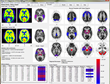 Syntermed Announces Expanded Availability of Emory Toolbox 4.0 and NeuroQ at RSNA