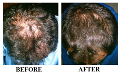 Revivogen is an all-natural topical thinning hair treatment developed by board-certified dermatologist Dr. Alex Khadavi