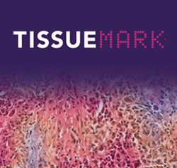 TissueMark tumormap img