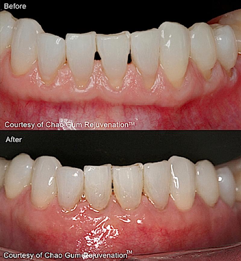 Milburn Nj Dentist Dr Vladimir Gashinsky Brings New