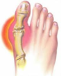 "Topical BioMedics Offers Help for Those Who Suffer with Gout with Its ""Get Gout Relief"" Initiative"