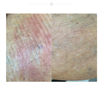 Physicians Agree That Using Dermaka Cream Reduces Redness and Bruising