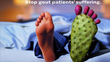 Gout symptoms usually consist of intense episodes of extremely painful swelling, most often in the feet