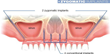 Zygomatic Dental implants for patients with little to NO JAW BONE in the upper jaw.