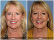 Cosmetic Surgery Plastic Surgeon Newport Beach Orange County Facelift Lower Facelift BOTOX Filler Fat Grafting Mini Lift Neck Lift Neck Liposuction
