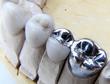 Benefits of Dental Implants vs. Bridges for Bay Area Patients...