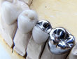 Oakland Dental Implant Page Updated by San Francisco Dental Implant Center