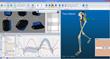 inertial sensor mocap, IMU gait, wireless gait analysis system