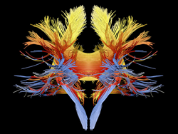 An image of white-matter fibers in the brain is among those available via Light Beyond the Bulb. Credit: ALFRED PASIEKA: www.alfred-pasieka.de