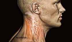 PT Continuing Education Course on Nech Pain Tteatments