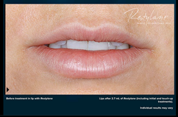 After Restylane Silk - Luscious Lips