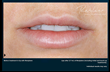 Your smile can be impacted by unsightly wrinkles and lines, but Dr. F....