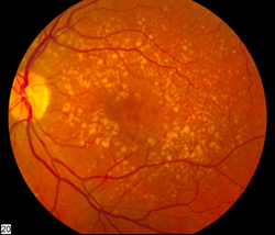 Intermediate age related macular degeneration