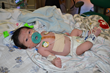 LLUCH patient Marcus Volpe underwent heart surgery at just 5 days old. Post surgery he was awake and alert.