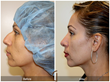Board Certified Facial Plastic Surgeon Announces Rising Trend in...