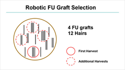 Robotic Graft Selection Generates More Hairs With Less Wounding