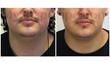 trevor schmidt PA-C, MyShape Lipo, jimmy tuma, chin liposuction